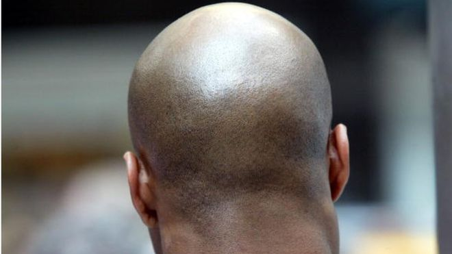 Bald men in Mozambique warned after ritual attack