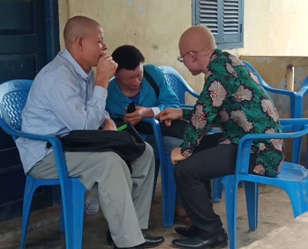 Albinos in Ghana are dying due to harsh weather conditions. Photo: Africa Feeds Media