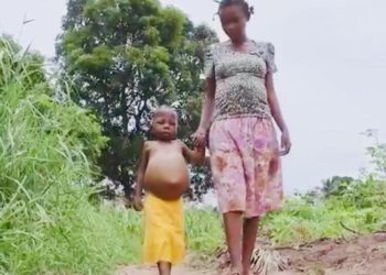 DR Congo hunger