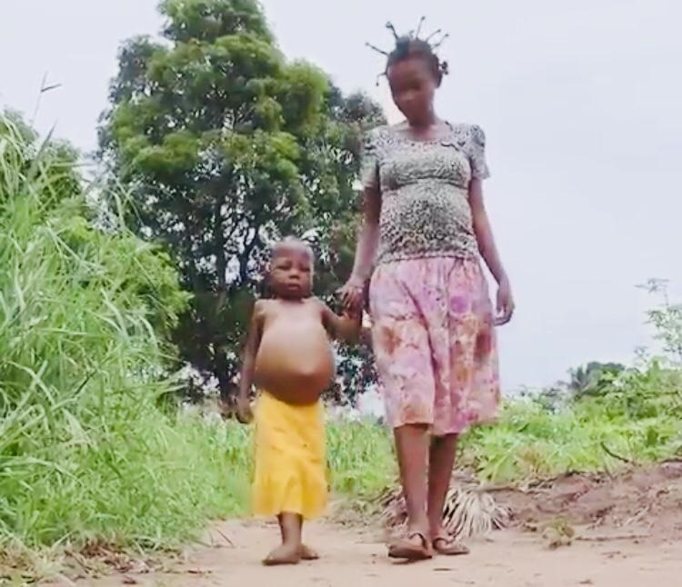 DR Congo hunger